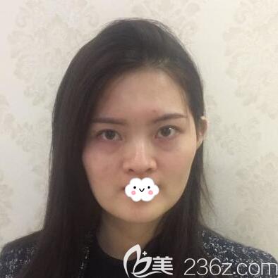 成都军大医学研究所附属医院杨勇术前照片1
