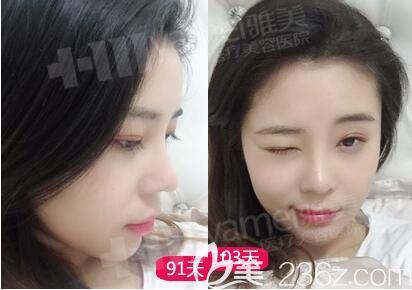 在雅美做完鼻整形恢复好后的效果照片
