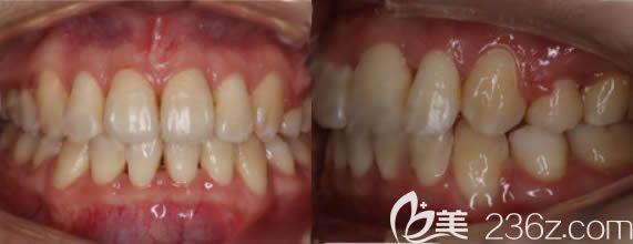 在北京牙管家口腔用了两年时间才完成我的牙齿深覆合拥挤矫正