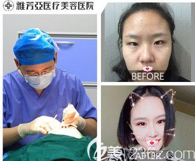 石家庄雅芳亚五月爆款整形项目大放价 双眼皮和美容冠超值价为2880元