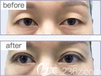 娄底美科双眼皮真人案例对比图