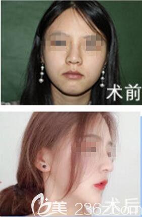 娄底希美整形鼻综合整形真人前后效果对比图