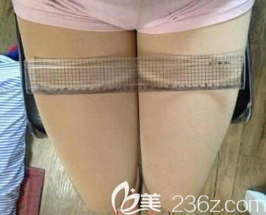 我在南宁梦想整形做大腿吸脂第30天