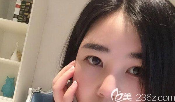 昆明梦想医疗美容医院张燕雄术前照片1