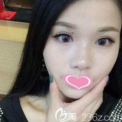 在武汉五洲莱美找周旭刚做面部自体脂肪填充+丰泪沟术后如获减龄秘籍