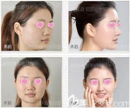 爱思特芭比三体真鼻术真人前后效果对比照片