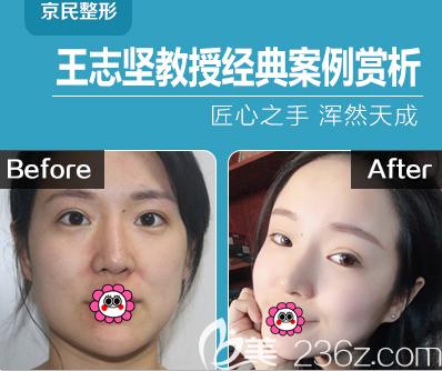 北京京民王志坚医生自体脂肪面部填充案例