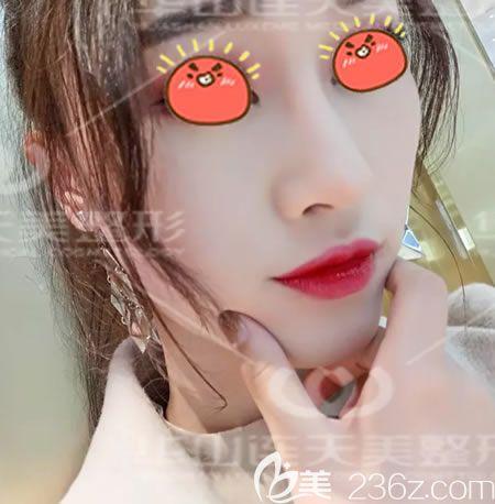 隆鼻多久可以抠鼻子屎?我在杭州华山连天美做隆鼻手术3个月后就能放心的挖鼻孔清理鼻屎了