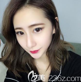 广州眼袋哪里割的好?公开我找广州紫馨谷琪医生做的祛眼袋手术效果和价格