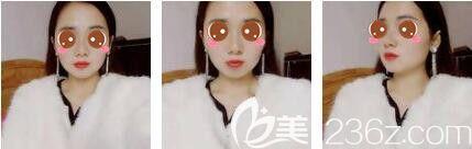 都说曹栋弼做下颌角安全靠谱,于是我来到上海愉悦美联臣做了下颌角磨骨