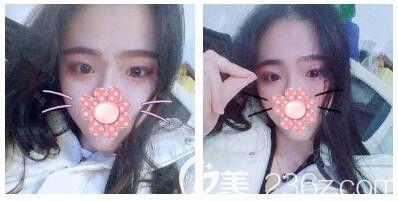 为了改善18年的单眼皮 妈妈带我去苏州康美做了韩式精切双眼皮双层缝合创口术后28天就能化妆了