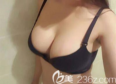 漂亮妈妈的平胸通过哈尔滨超龙假体隆胸后成功变身,还报名参加娜琦丽年度盛典