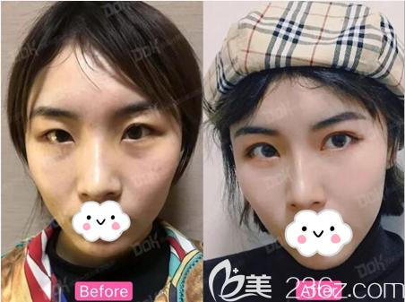 成都铜雀台双眼皮术前术后对比照