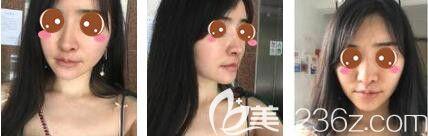 上海面部填充哪家好?我在上海韩镜找赵越做自体脂肪填充全脸一周的变化图