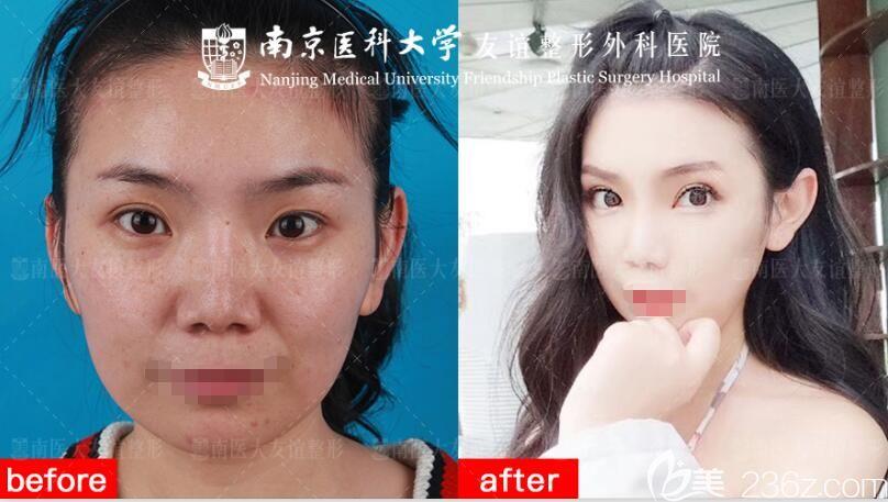 南京医科大学友谊整形外科医院扬州门诊部分享眼鼻综合整形++案例对比