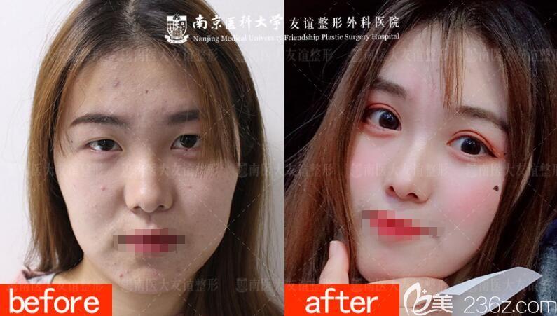 南京医科大学友谊整形外科医院扬州门诊部分享做双眼皮+去皮去脂案例对比