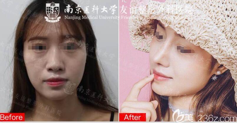 在南京医科大学友谊整形外科医院扬州门诊部做硅胶假体+自体软骨鼻综合案例对比