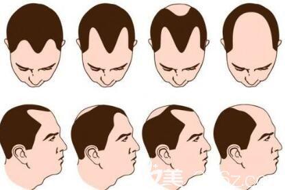 什么是自体脂肪疤痕植发