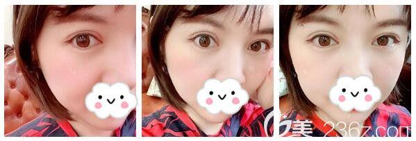 终于盼到南京医科大学友谊整形外科扬州院营业做了切开双眼皮现在已经恢复半个月了基本消肿