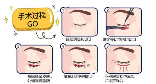 去眼袋流程图
