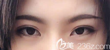 一个月前找西宁夏都整形李广智做了仿生无痕双眼皮,才让眼睛不留痕迹跟自然的一样