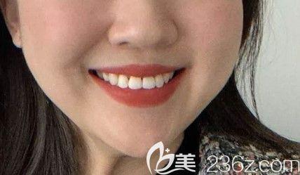 我这次在深圳拜尔口腔做的隐适美矫正效果很不错,比深圳北大医院的牙齿矫正价格便宜多了