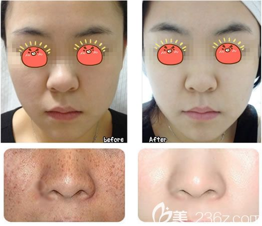 台州爱莱美整形祛痘祛斑案例