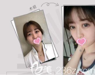上海光博士医疗美容门诊部全切双眼皮真人案例