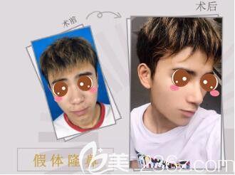 上海光博士医疗美容门诊部假体隆鼻真人案例