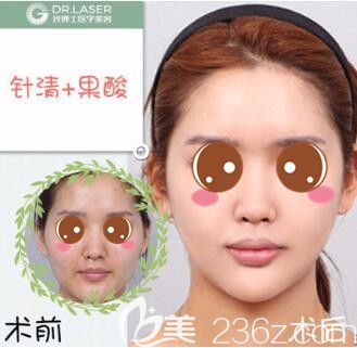 上海光博士医疗美容门诊部祛痘真人案例