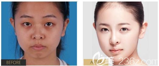 福田庆三做的鼻综合隆鼻子案例对比图片