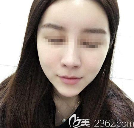 韩国拉菲安(LAVIAN)整形外科医院郑宰永术前照片1