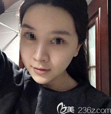 韩国拉菲安做颧骨缩小术+长曲线下颌角手术后2周