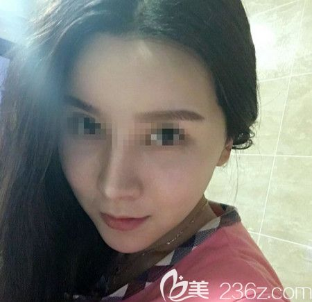 韩国拉菲安做颧骨缩小术+长曲线下颌角手术后1个月