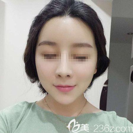 韩国拉菲安(LAVIAN)整形外科医院郑宰永术后照片1