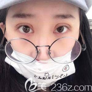 天宏整形主任孙苏宁为我做双眼皮术后5天微肿