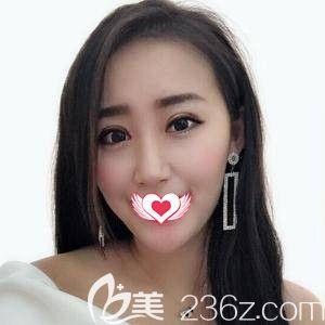 石家庄天宏医疗美容医院孙苏宁术后照片1