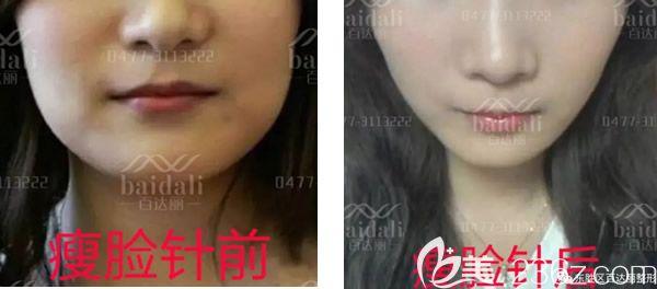 东胜区百达丽李松蔚打瘦脸针前后对比照片