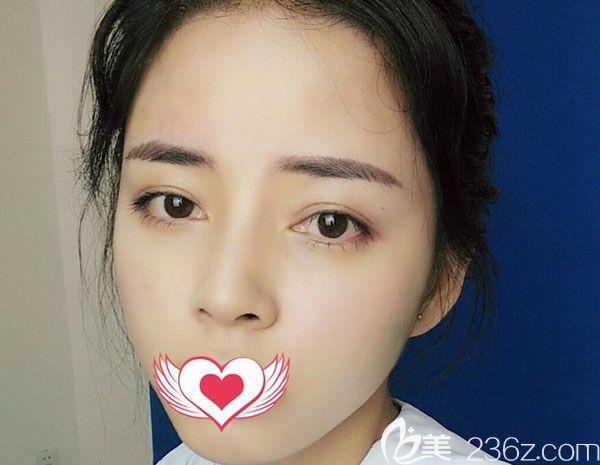 脸颊凹陷找昆明华美美莱李大铁做了玻尿酸填充两侧脸颊后,效果简直太美了