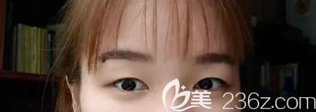 宜春天泽美容医院史希杰术前照片1