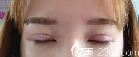 去宜春天泽医院找史希杰院长做平行双眼皮术后即刻效果