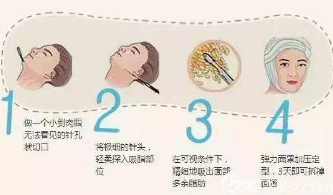 面部吸脂原理