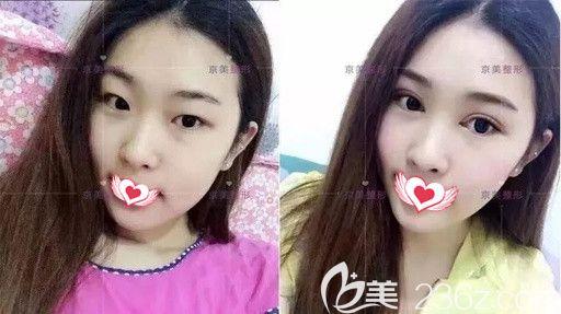 邯郸京美医疗美容5月整形优惠进行中 做双眼皮和注射衡力瘦脸针都是680元