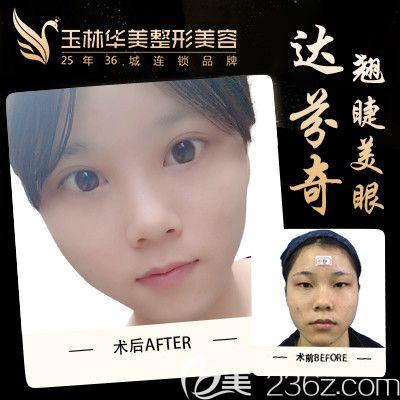 玉林华美双眼皮手术案例