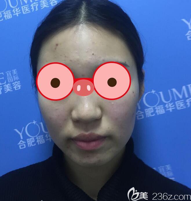 不清楚合肥福华整形怎么样,可以看梁怀兰院长给我做的面部吸脂21天恢复过程图