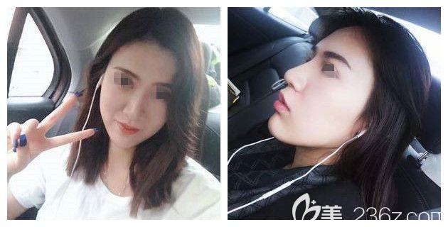 原上海九院医生陈勇坐诊苏州康美,预约三个月终于面诊到做了硅胶+耳软骨垫鼻尖的综合鼻整形