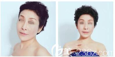 对比扬州公立医院后选择了新开的三级南京医科大学友谊整形扬州分院做激光改善了先天青斑胎记