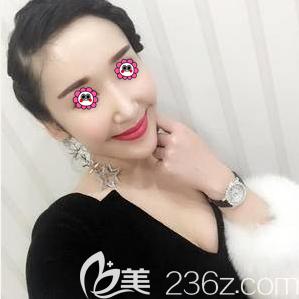 我在北京长虹做鼻修复是因看到好友找于智宏做双眼皮修复效果不错
