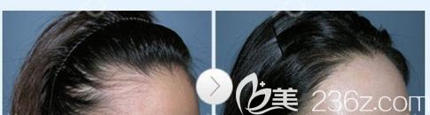 东莞美立方植发怎么样
