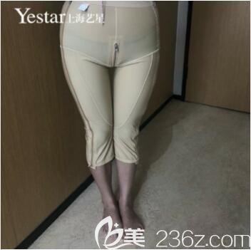 上海艺星医疗美容医院大腿吸脂真人案例术后第五天